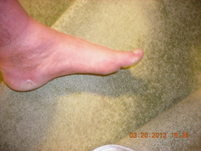 Forests other foot injury.JPG